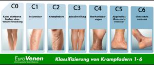 Symptome von Krampfadern